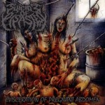 Suicide Of Disaster – Evisceration Of Pregnant Abdomen